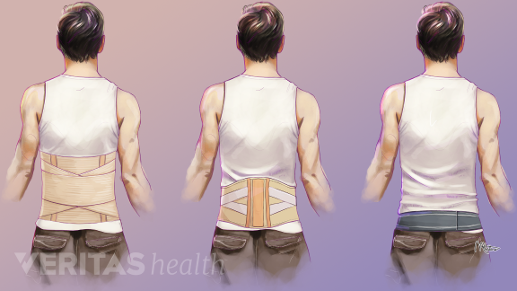 types of medical bracers for lower back pain