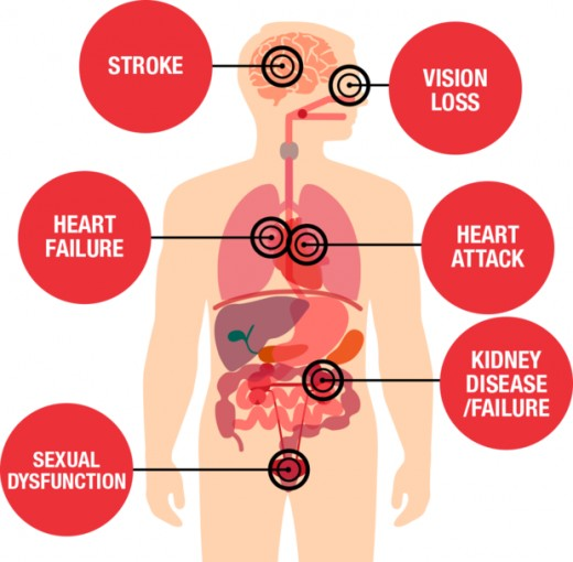Complications-of-high-blood-pressure